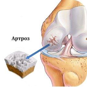 Лечение артроза в ЛОР-Клинике Оренбург