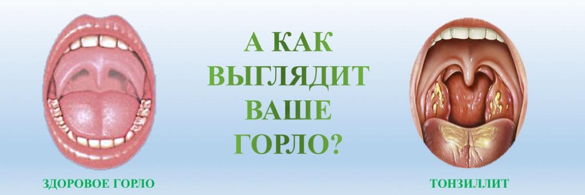 тонзиллит у детей и взрослых лечение в Оренбурге лор клиника