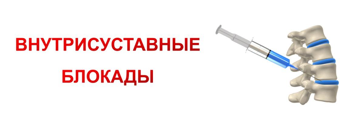 проведение медикаментозных блокад в оренбурге
