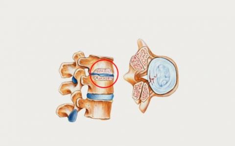 протрузия межпозвоночного диска лечение позвоночника ЛОР-Клиника оренбург