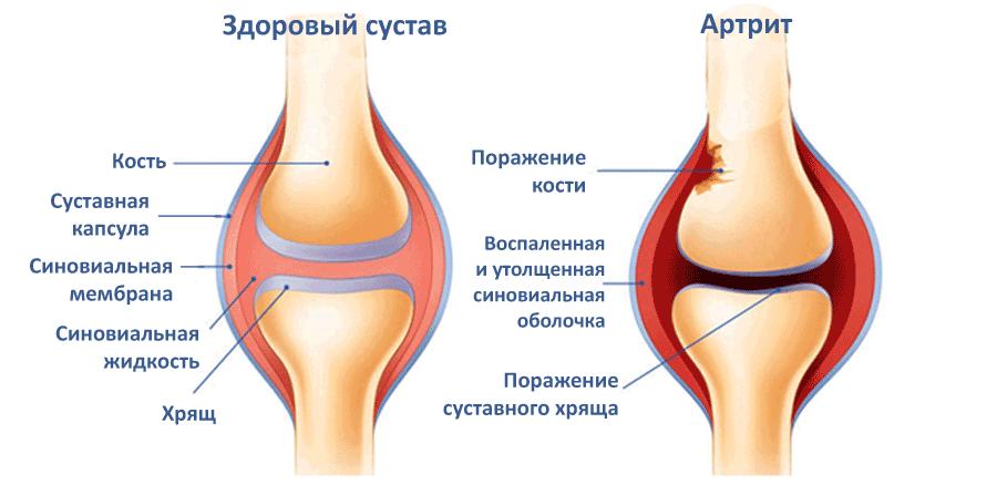Артрит лечение суставов в ЛОР - Клинике Оренбург