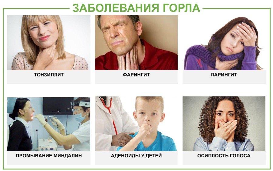 заболевания горла у детей и взростлых