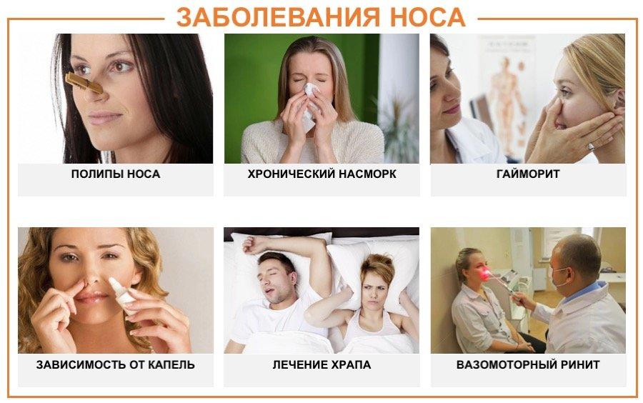 заболевания носа у взрослых и детей