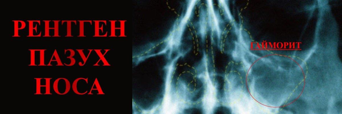 рентгенография пазух носа в оренбурге