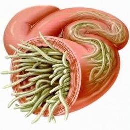 аксариды в кишечнике, методы диагностики и лечения