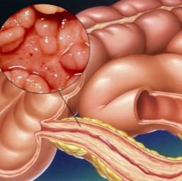 болезнь крона причины, симптомы диагностика