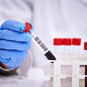 Вирусные гепатиты. Первичная диагностика