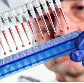 Пренатальный скрининг трисомий II триместра беременности