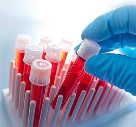 Обследование крови в оренбурге