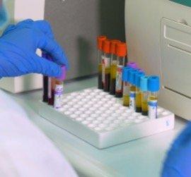 Анализы крови в Оренбурге
