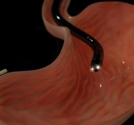 Гастроскопия желудка
