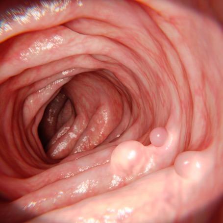 Полипы кишечника диагностика и лечение