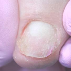 Результат лечения вросшего ногтя случ 1.2