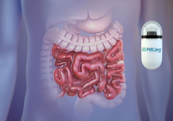 Капсульная эндоскопия тонкой кишки
