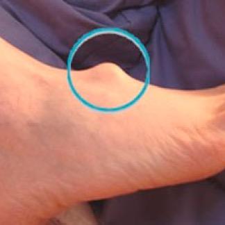 Гигрома стопы лечение в Оренбурге